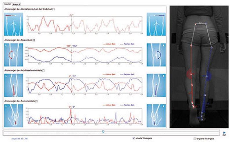 Die dynamische Wirbelsäulenvermessung | 4D-Wirbelsäulenvermessung
