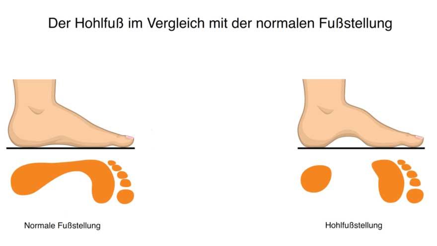 Was ist ein Hohlfuß? | Fußfehlstellung, Gelenkschmerzen, Lüneburg