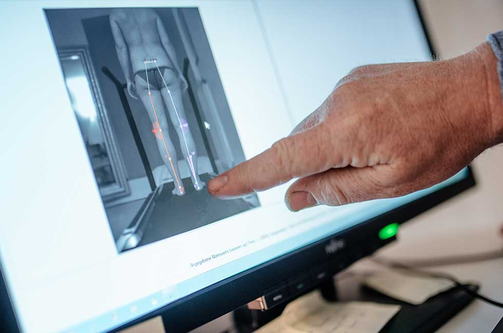 Kurzinfo 4D-Wirbelsäulenvermessung | 4D-Wirbelsäulenvermessung