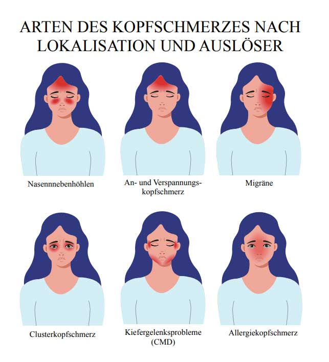 Kopfschmerzen: Arten | Kopfschmerzen Cluster-Kopfschmerz Clusterkopfschmerzen Spannungskopfschmerzen