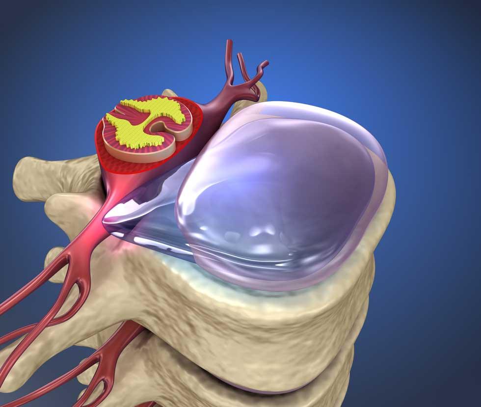 Was ist ein Bandscheibenvorfall? | Bandscheibenvorfall Prolaps, Lendenwirbelsäule LWS, Halswirbelsäule HWS, Brustwirbelsäule BWS