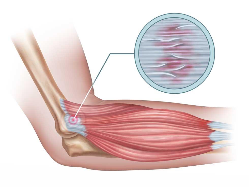 Was ist ein Tennisarm? | Tennisarm Tennisellenbogen Epicondylitis