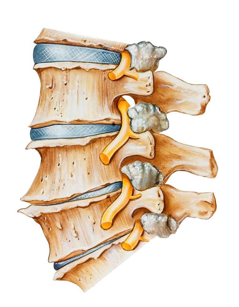 Bandscheibenvorfall: Ursache? | Bandscheibenvorfall Prolaps, Lendenwirbelsäule LWS, Halswirbelsäule HWS, Brustwirbelsäule BWS