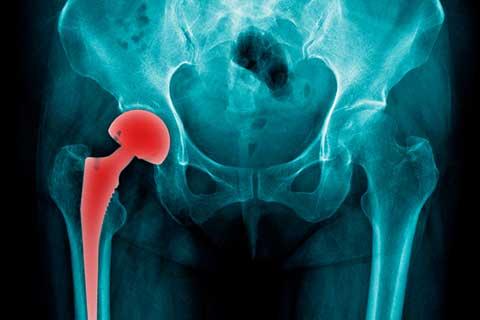 Anatomische Ursache | Beinlängendifferenz Beckenschiefstand