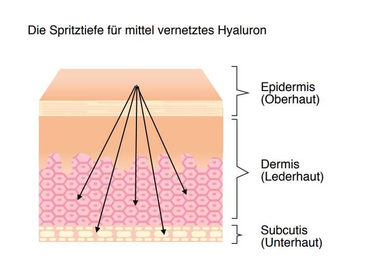 Unterschiedliche Hyaluronsäurezusammensetzungen | Therapie mit Hyaluronsäure