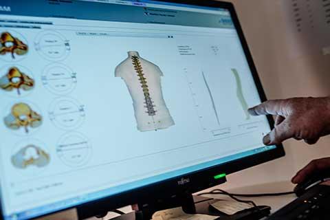 Weiterführende Diagnostik | Rückenschmerzen: Diagnostik