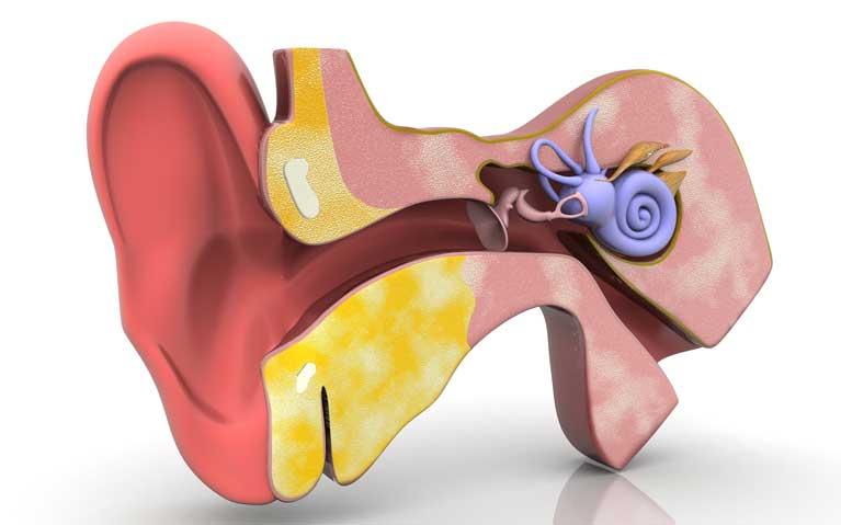 Ursachen   Tinnitus Ohrgeräusche Ohrgeräusch