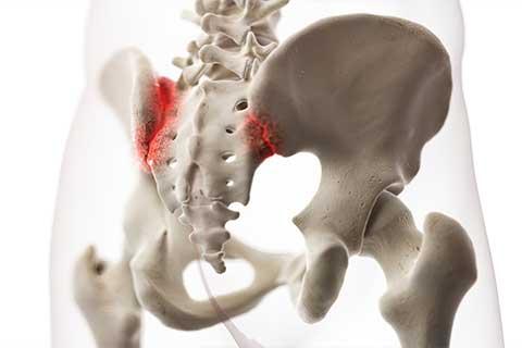 Funktionelle Ursache | Beinlängendifferenz Beckenschiefstand