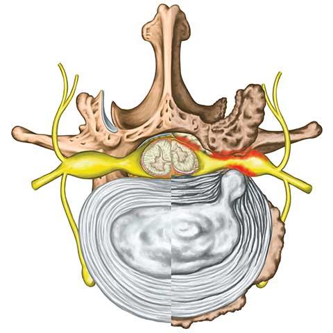 Symptome bei einem Bandscheibenvorfall (Prolaps) | Häufige Beschwerdebilder