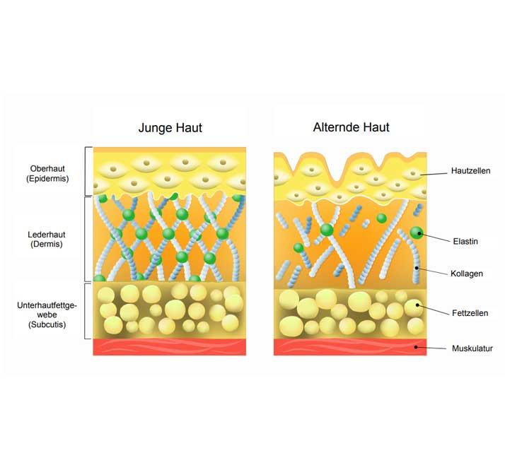 Warum sinkt der Hyaluronsäurespiegel in der Haut ab? | Hyaluron, Hyaluronsäure, Lüneburg
