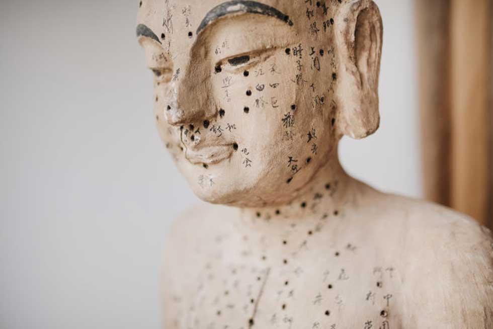 Akupunktur | Therapieverfahren