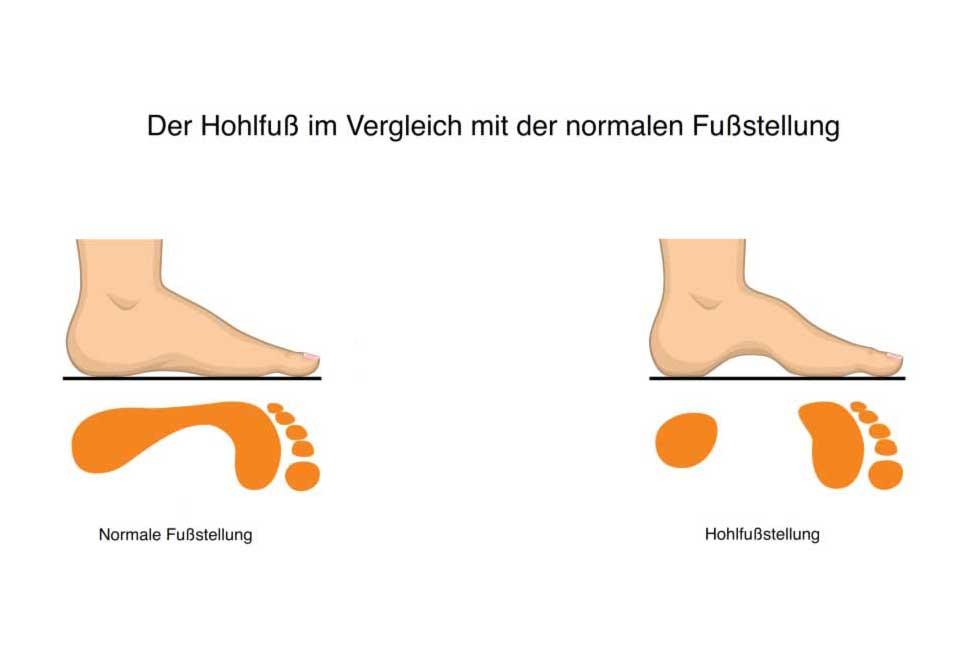 Hohlfuß   Fußfehlstellungen
