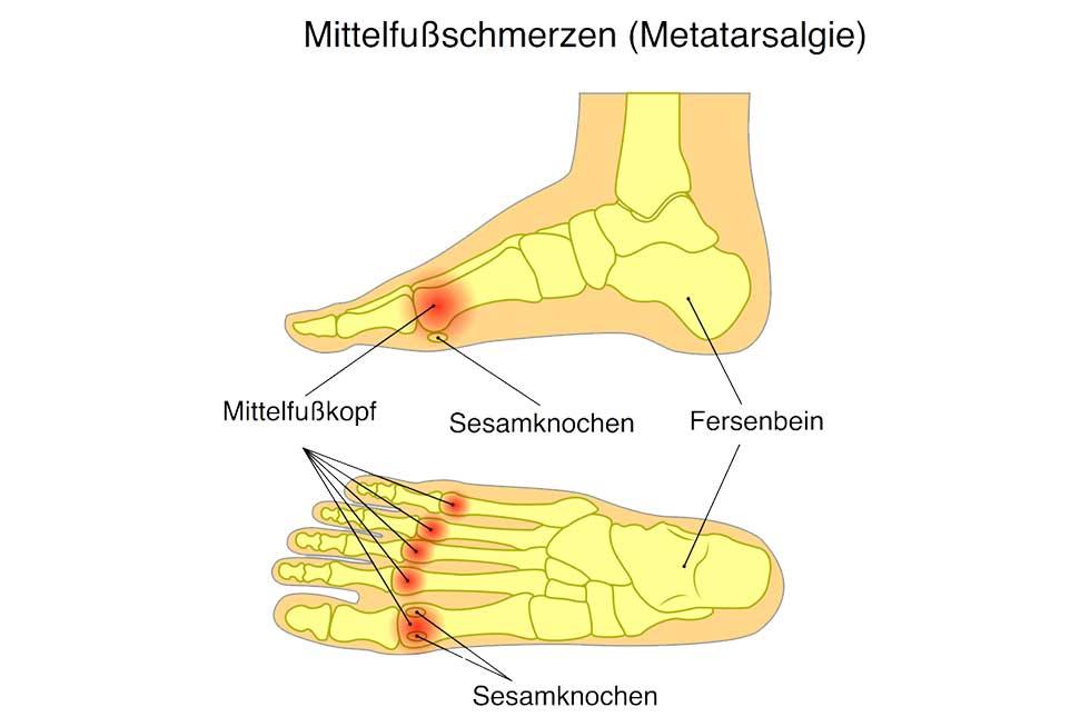 Spreizfuß   Fußfehlstellungen