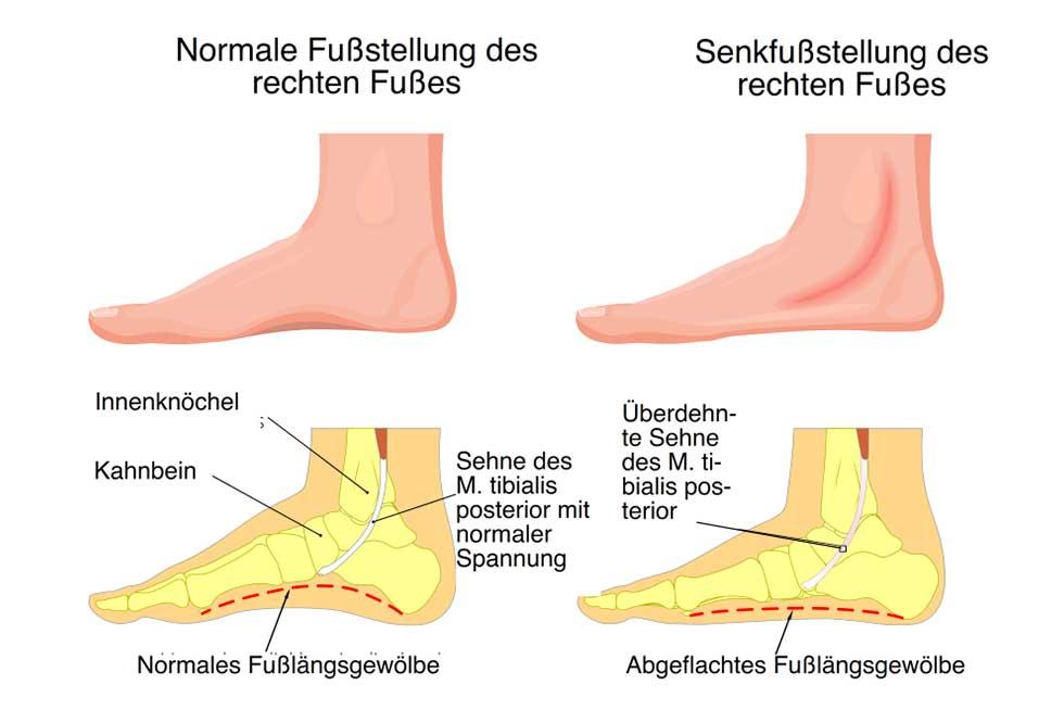 Senkfuß   Fußfehlstellungen