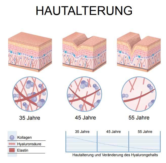Warum entstehen Hautfalten?   Zornesfalte Stirnfalten Lüneburg
