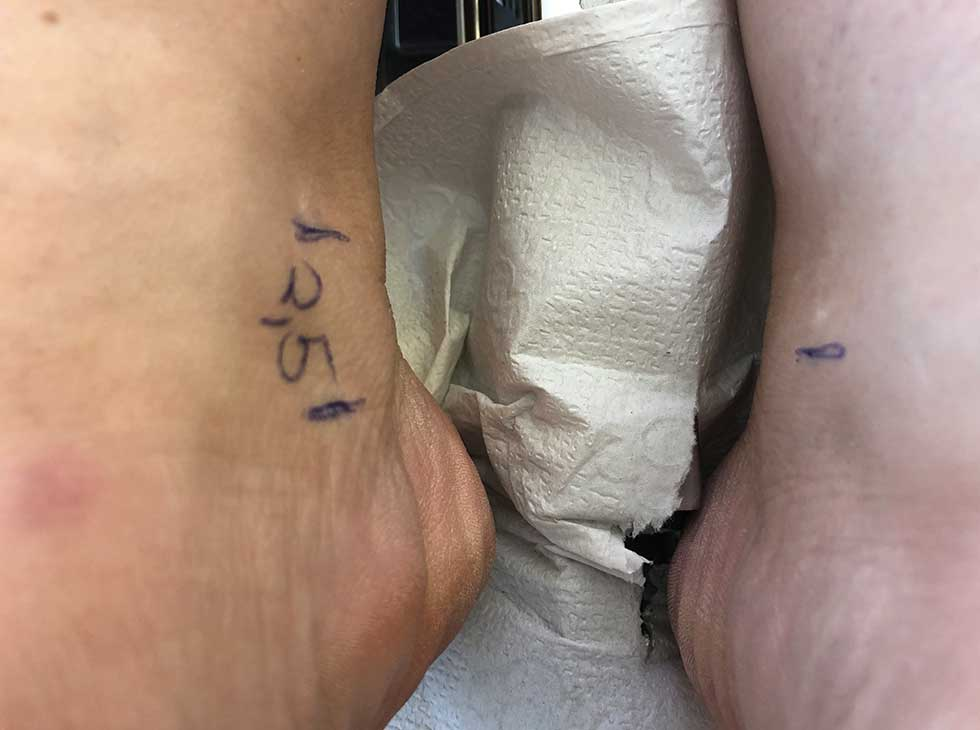 Was ist eine Beinlängendifferenz? | Beinlängendifferenz Beckenschiefstand