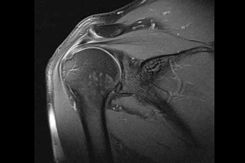Meine Diagnostik von Schulterschmerzen | Schulterschmerzen Impingement Syndrom Schulter Schmerzen im Arm frozen shoulder