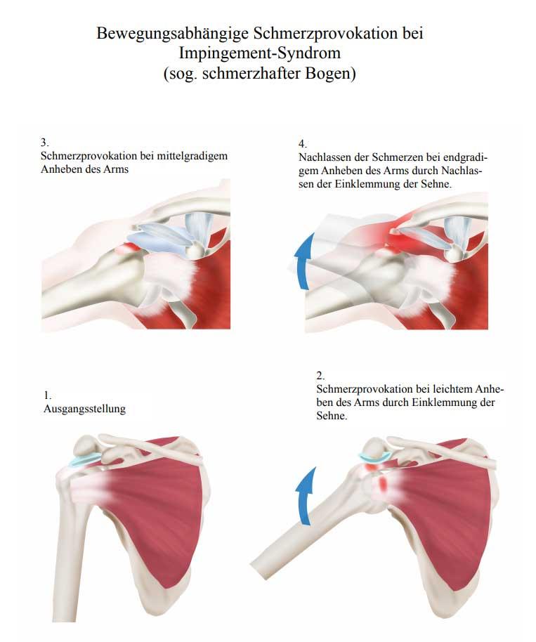 Was sind Schulterschmerzen? | Schulterschmerzen Impingement Syndrom Schulter Schmerzen im Arm frozen shoulder