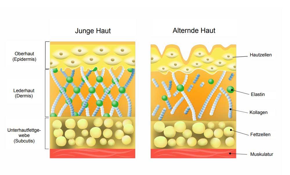 Was ist die Therapie mit Hyaluronsäure? | Hyaluron, Hyaluronsäure, Lüneburg