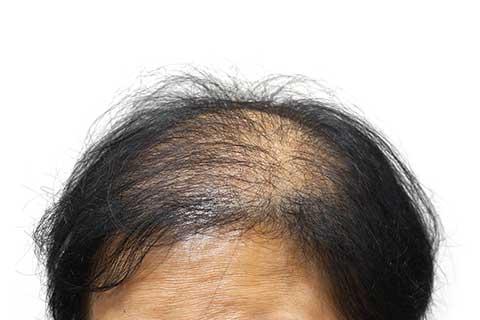 Hormonell bedingter diffuser Haarausfall (Alopecia Androgenetica)   Haarausfall