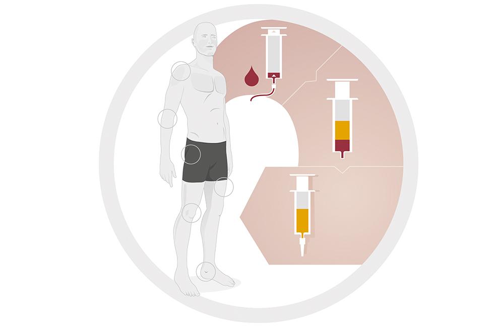 PRP-/ACP-Therapie | Therapieverfahren