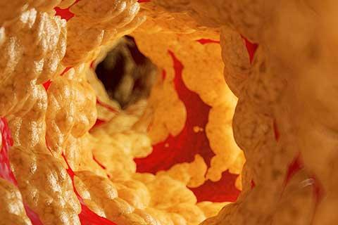 Stille Entzündung (Silent inflammation) | Arterienverkalkung