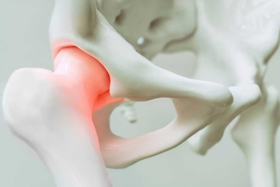 Warum entstehen Hautfalten | Ästhetische Medizin