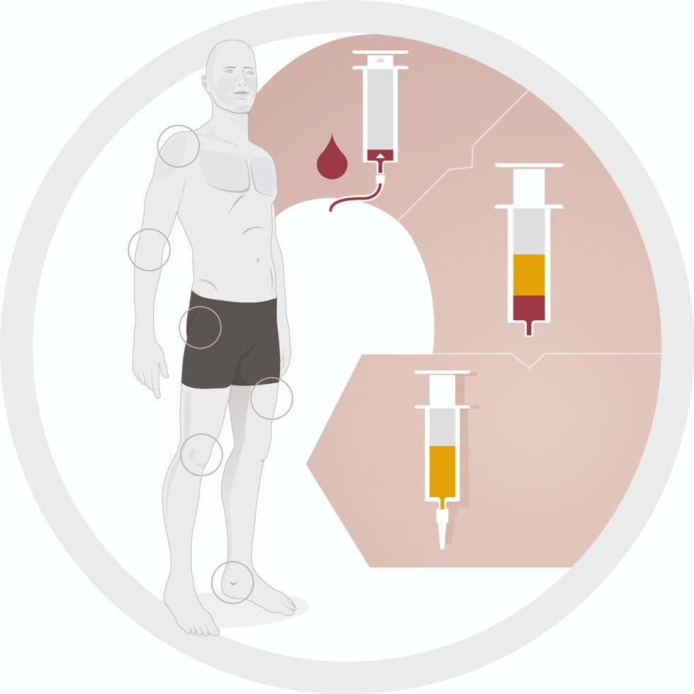 Begriffsbestimmung | PRP-/ACP-Therapie als besondere Eigenblutbehandlung