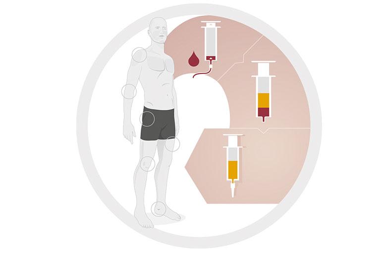 PRP-/ACP-Therapie   Therapieverfahren